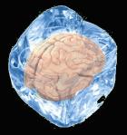 brainice
