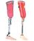 protesisymuchomas